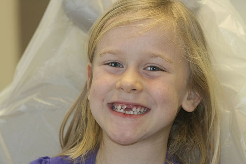 smiling child with missing front tooth